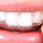 Ealing Dental Specialists - Essix Retainers
