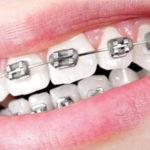 Ealing Dental Specialists - Metal Fixed Braces