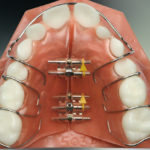 Ealing Dental Specialists - Removable Appliances